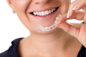 clear braces orthodontics